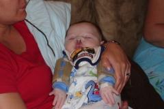 Sleeping at home post lip repair surgery