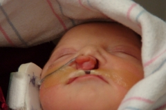 NICU taping/feeding tube