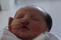 Feeding tube/taping in NICU